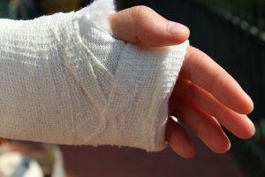 Arm injury.